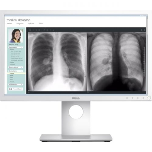 """Dell Medical Review 21.5"""" Edge LED LCD Monitor - 16:9 - 14 ms"""